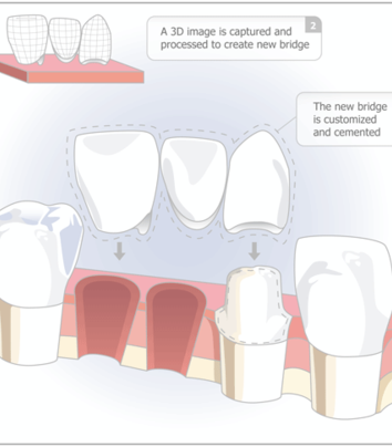 Dental Bridges Clairemont Mesa