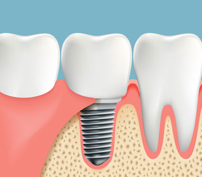 Dental Implants Dental Bridges Clairemont, San Diego