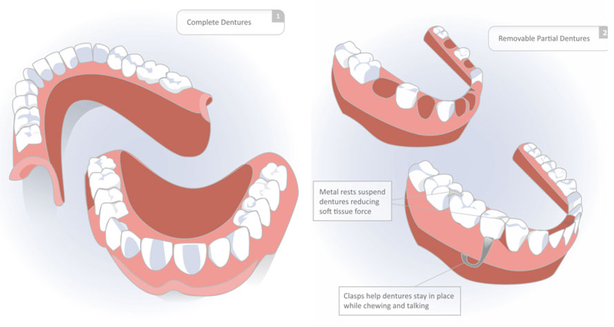 Dentures Clairemont, San Diego, CA | Friendly Family Dental