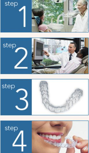 Invisalign in Clairemont Mesa - 4 Steps to Straighter Teeth