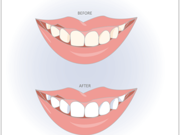 Teeth Whitening Clairemont Mesa, San Diego