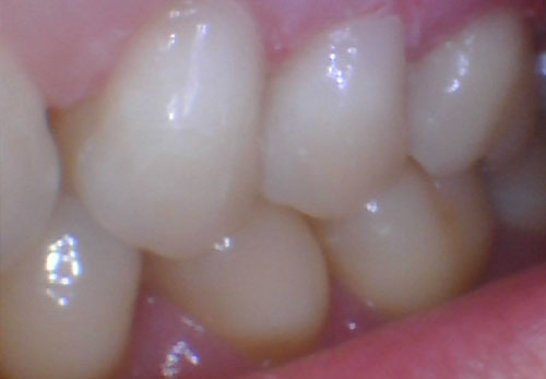 Bruxism Abfractions After