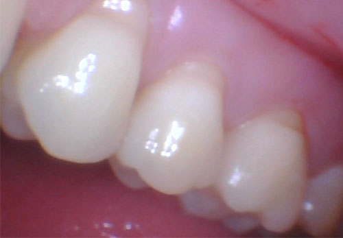 Bruxism Abfractions Before