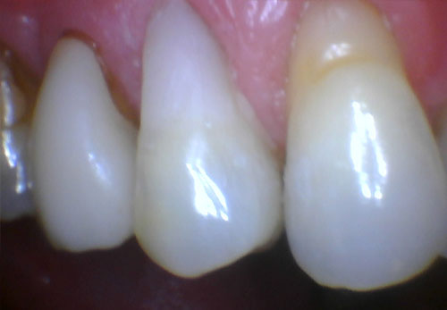 Filling Gum Line After